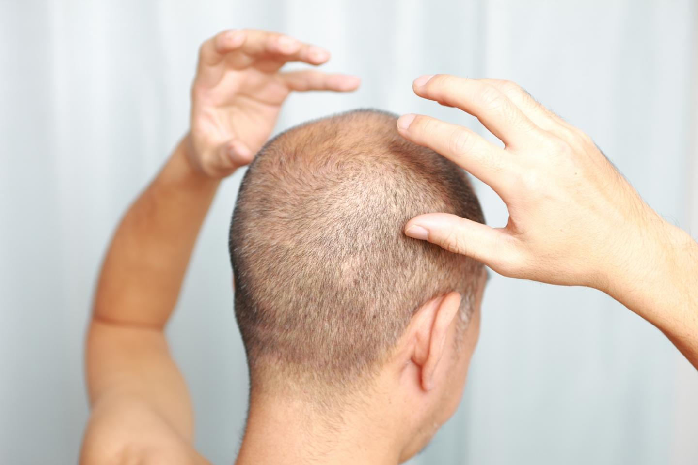 Is Biotin Helps The Thin Hair Problems