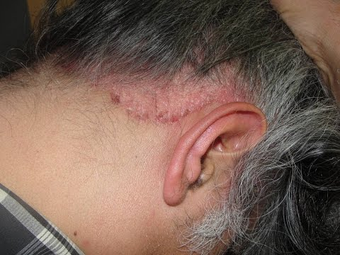 Skin And Hair Problems Scalp Psoriasis Olilab