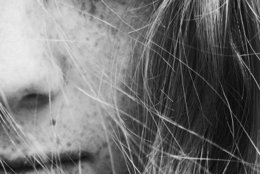 Olilab - Tamne mrlje, pjege i neujednačen ten (hiperpigmentacija)