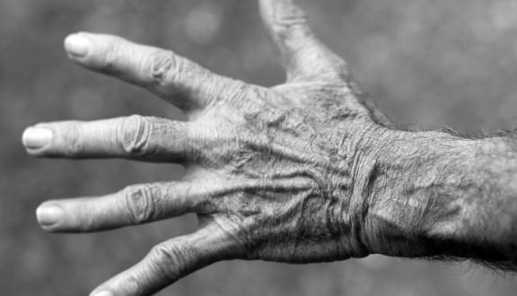 Nastajanje bora na koži - Olilab