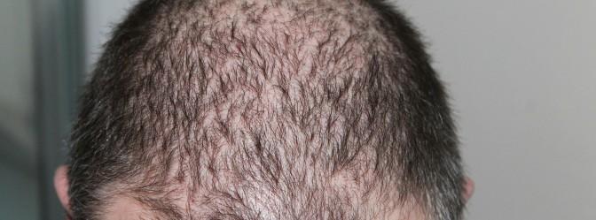 Olilab - Najčešći zdravstveni razlozi ispadanja kose